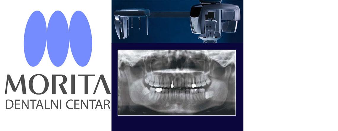 morita snimanje zuba